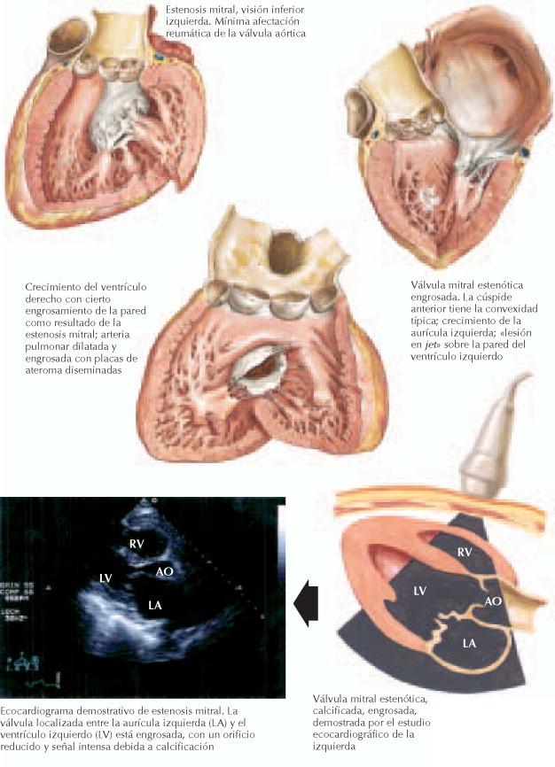 Excepcional Válvula Mitral Anatomía Eco Composición - Imágenes de ...