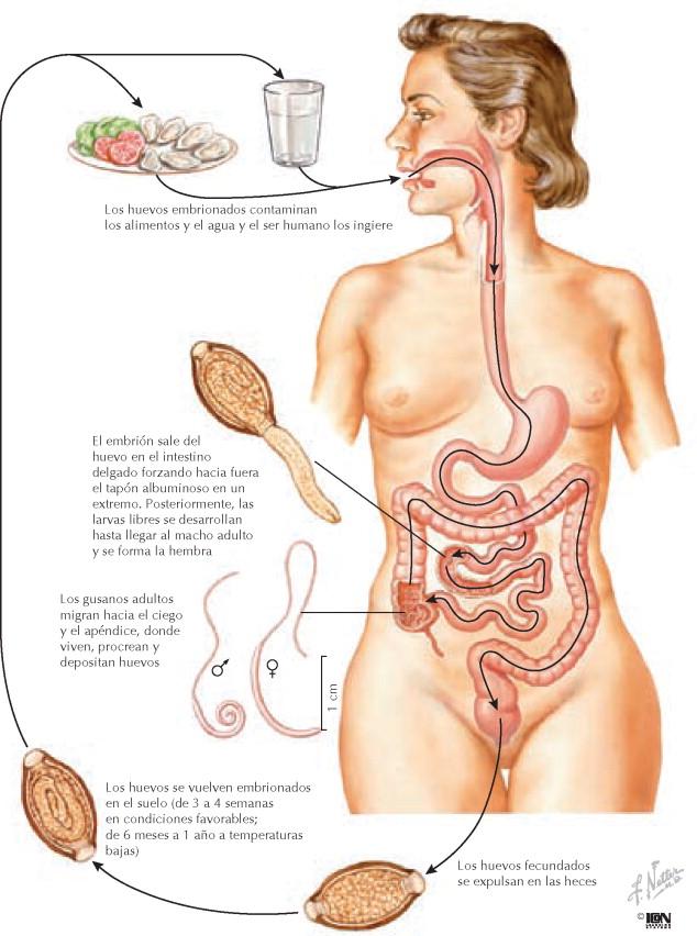 Tricuriasis - Netter. Gastroenterología - Capítulo 173