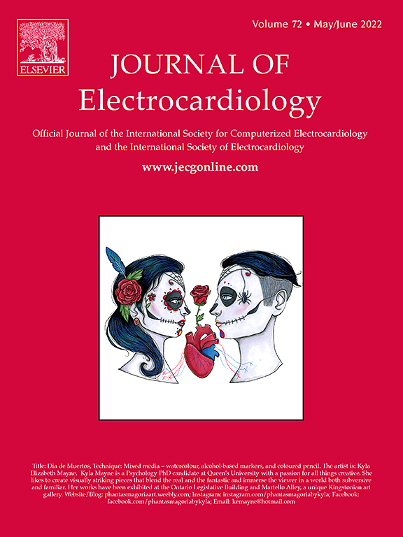 Journal of Electrocardiology | ScienceDirect com