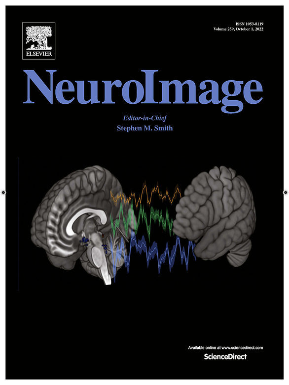 NeuroImage journal cover (February 2019) - Bajada et. al.