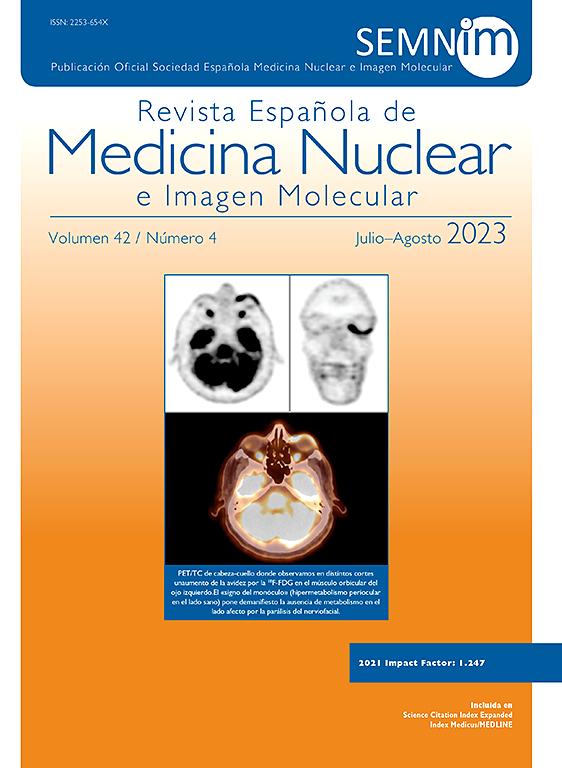Go to journal home page - Revista Española de Medicina Nuclear e Imagen Molecular