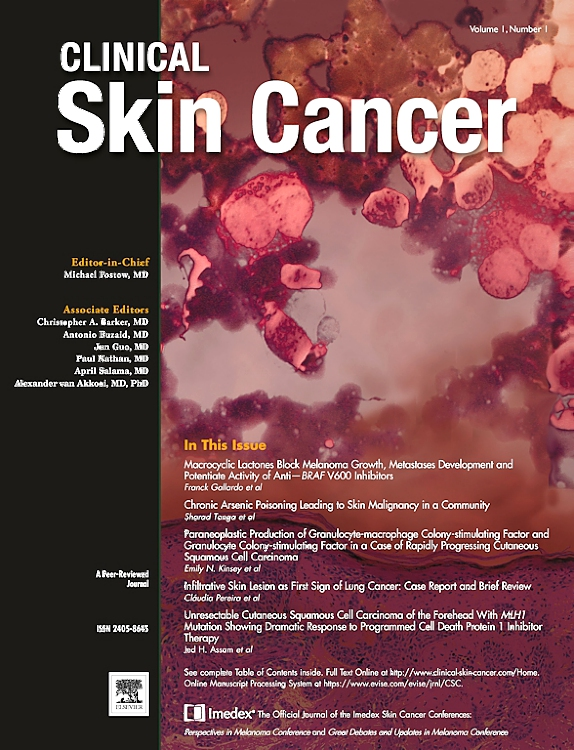 Recent Clinical Skin Cancer Articles Elsevier